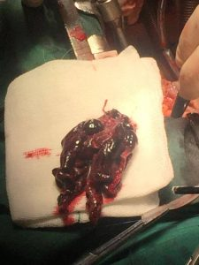 جراحی امبولی ریه
