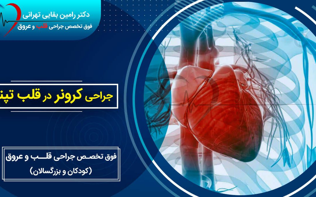 جراحی کرونر در قلب تپنده