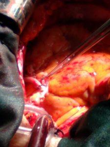 جراحی کرونر