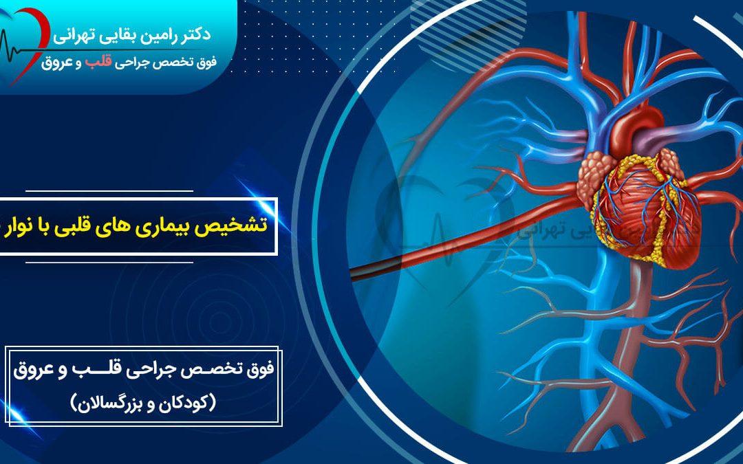 تشخیص بیماری های قلبی با نوار قلب