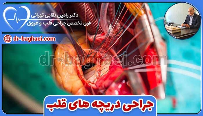 جراحی دریچه های قلب